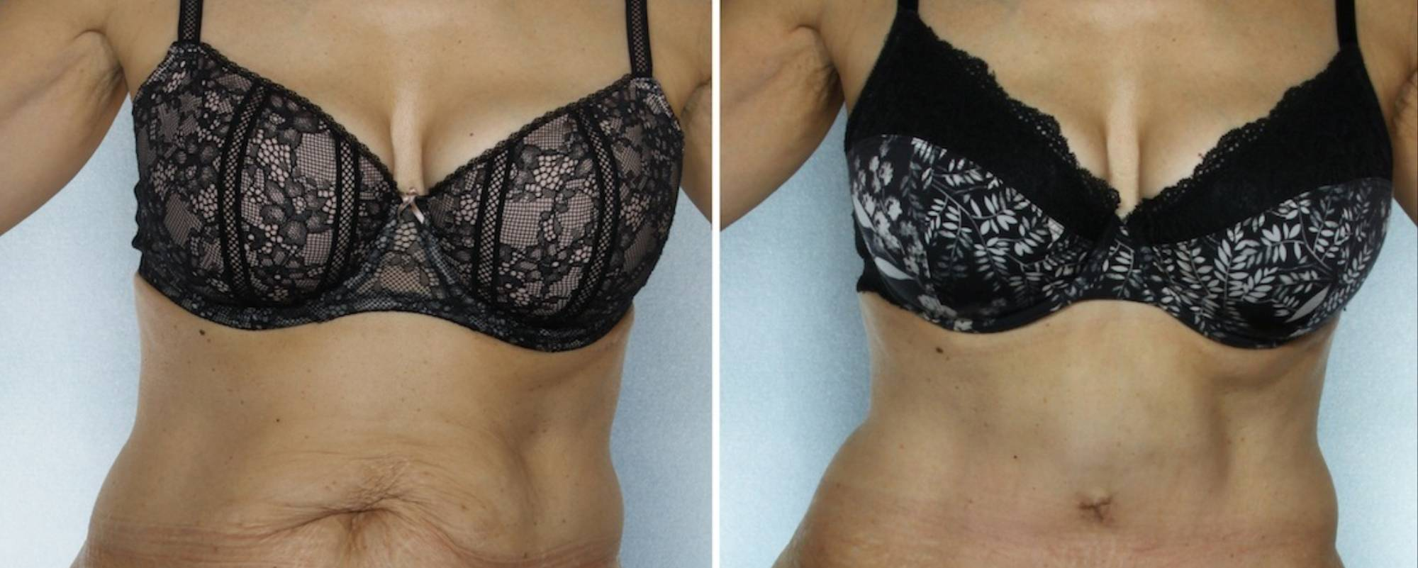 The Strange, Sensitive World of Plastic Surgery Photography