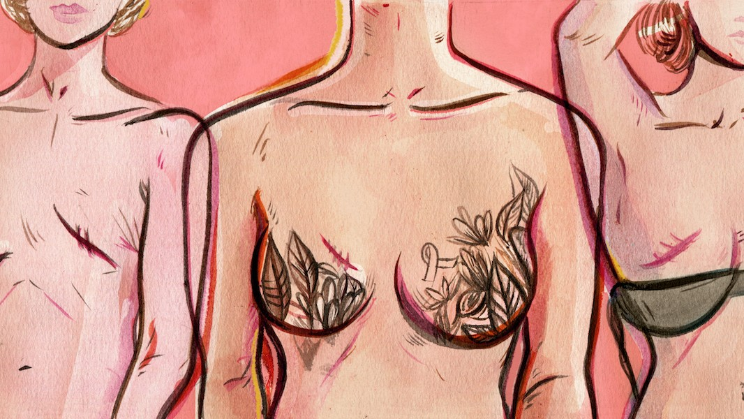 'I Felt Like I Was Alone:' What It's Like to Fight Breast Cancer in Your 20s